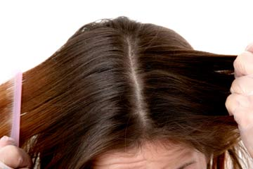 How it affect the scalp