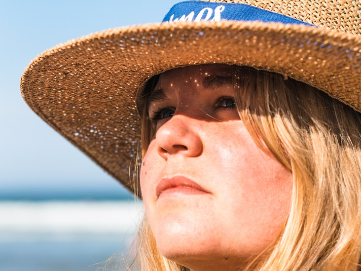 Skin Reduce Sunburn