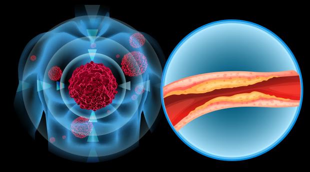 Benefits of Fenugreek Seeds for Cholesterol