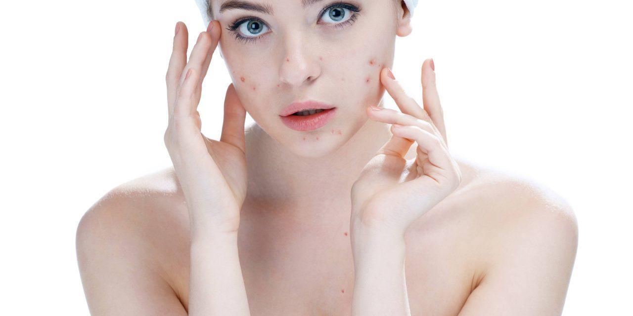 Reduce Pimples