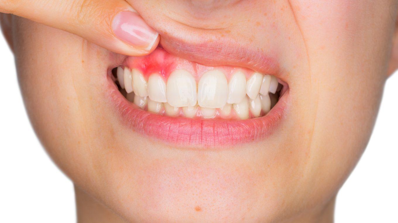 Treat Gum Diseases