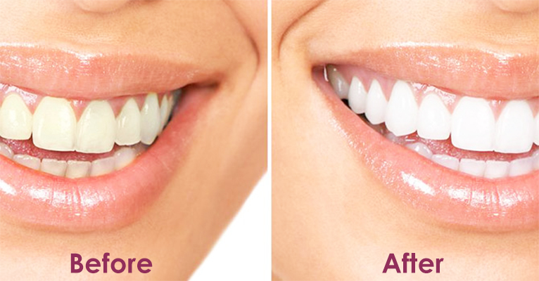 Benefits Of Teeth Cleaning Or Scaling