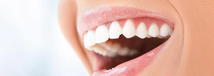 Cracks in Teeth