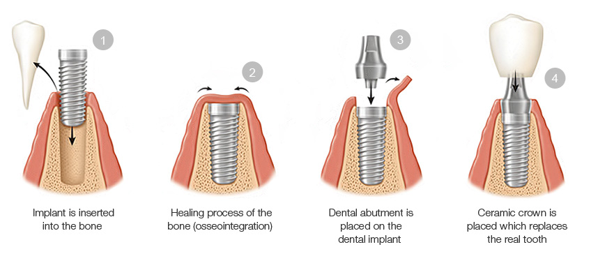 Procedure Of Tooth Implantation