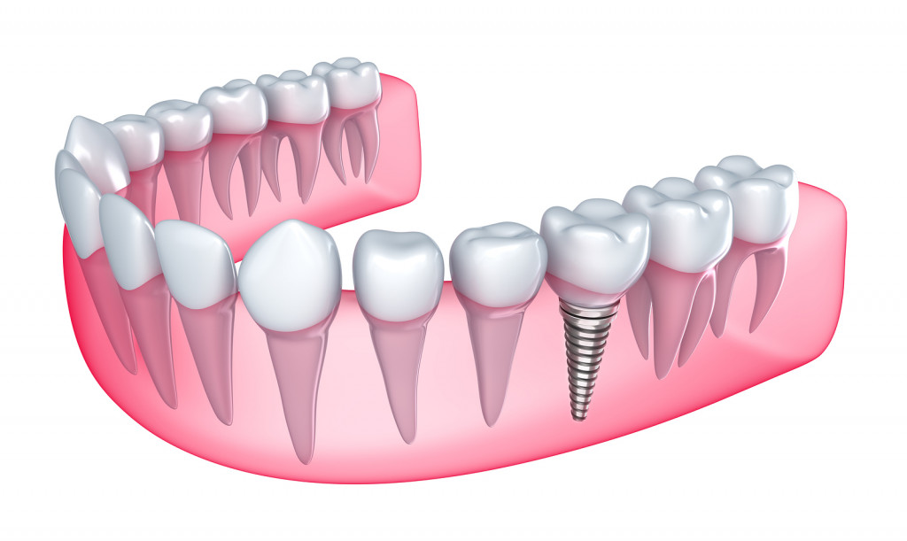 Tooth Implantation or Fake Tooth