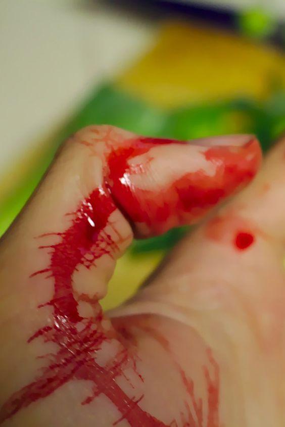Excessive Bleeding