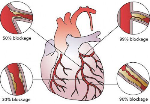 What Is Heart Blockage