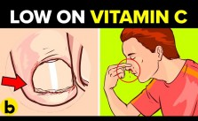 Vitamin C Deficiency1